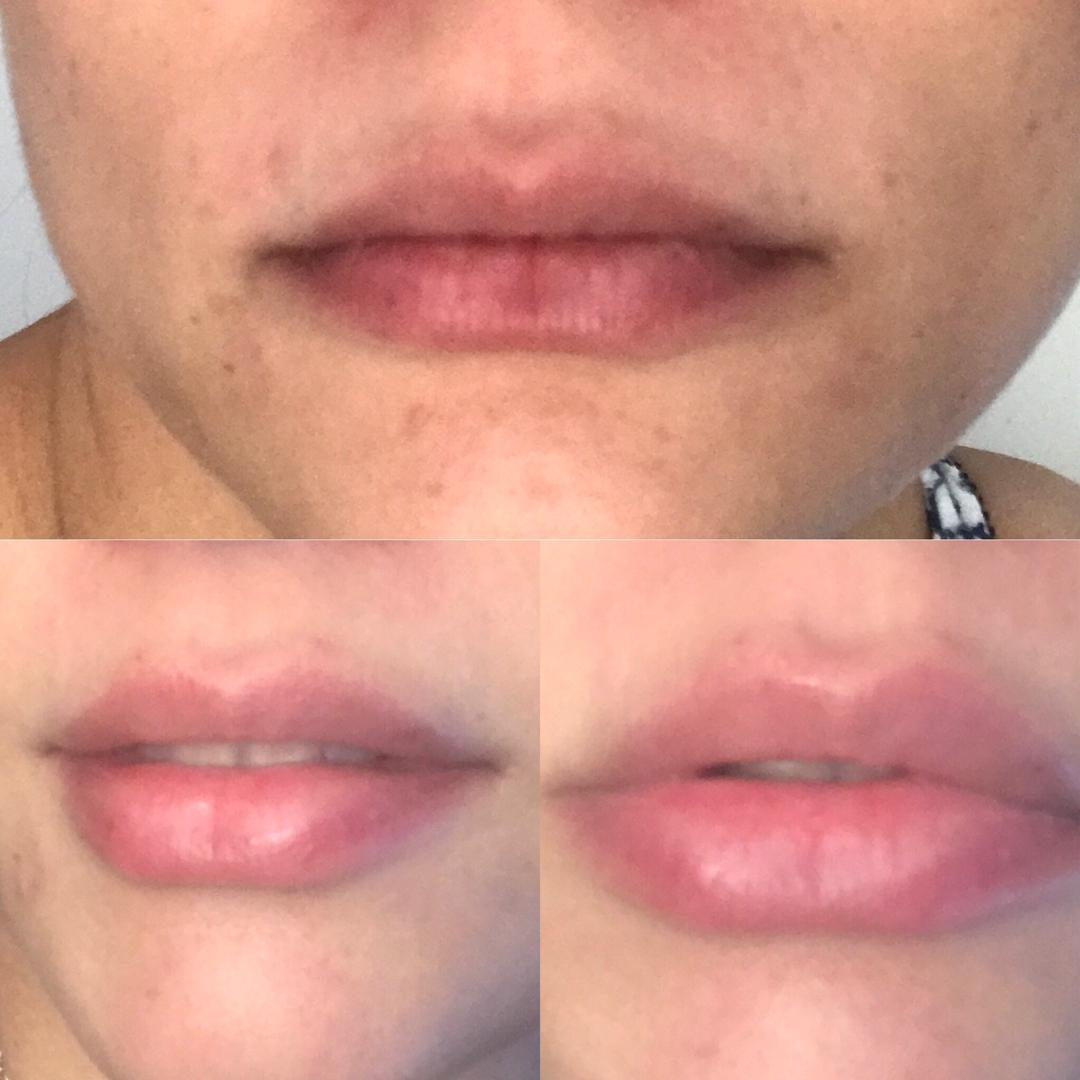 Lip fillers before and after orlando florida 2