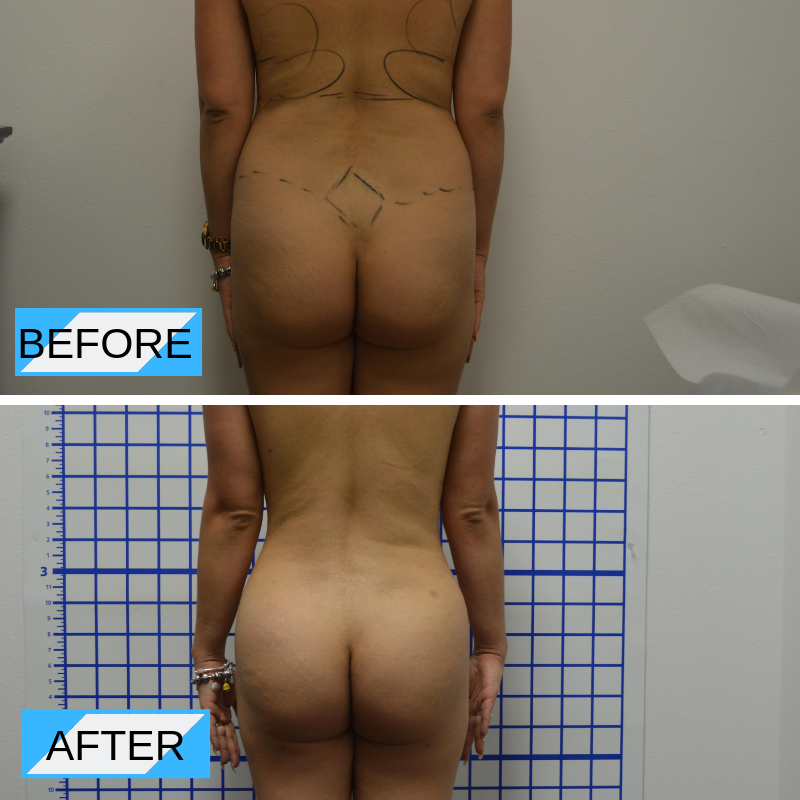 Colombian Liposculpture™ Before and After Orlando 4