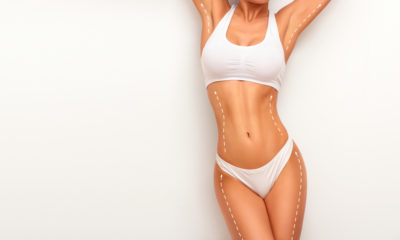 Liposuction in orlando, fl orlando florida 10